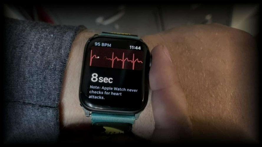 Tính năng điện tâm đồ ECG trên Apple Watch Series 4 đã cứu sống một người phụ nữ khỏi cơn đau tim